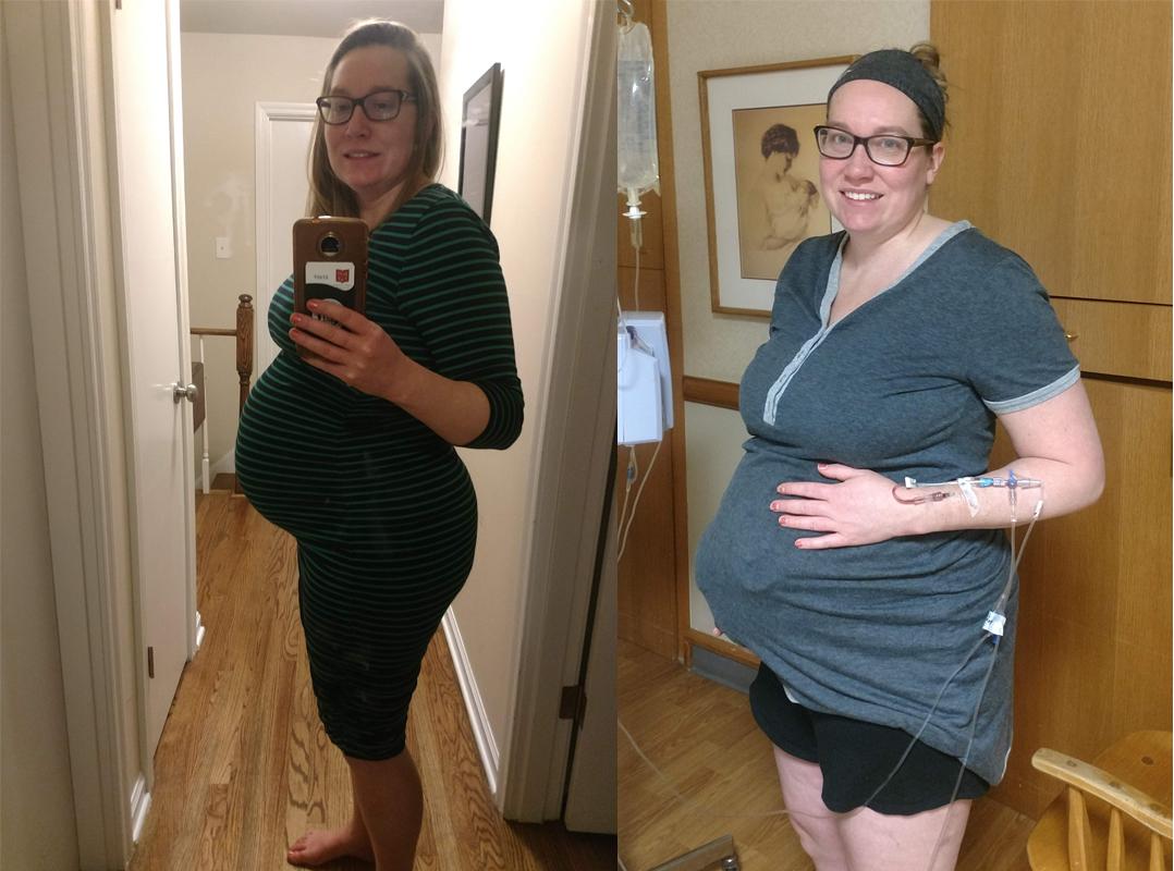 Kasey's 37-week bump